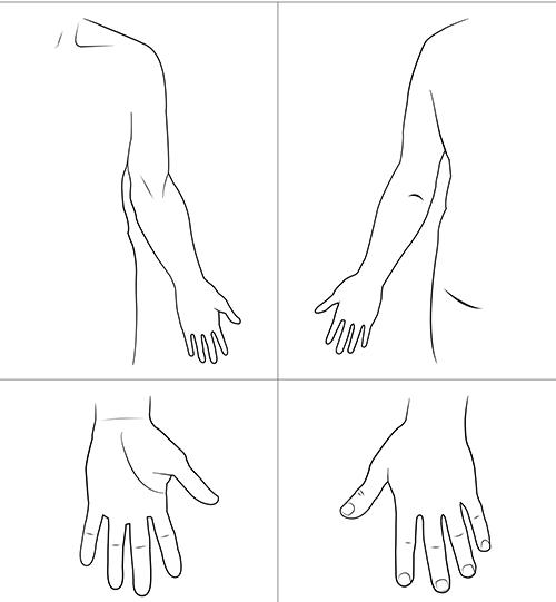 Kroppsskiss över vänster hand och arm